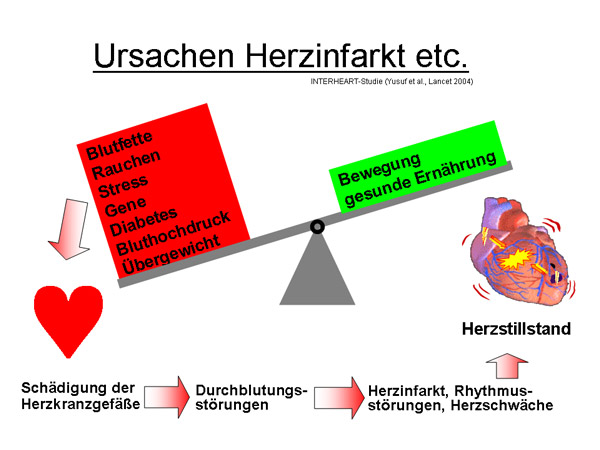 Ursachen Herzinfarkt